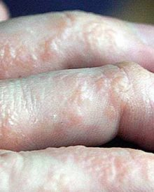 Eczema Natural Remedies: Use an Alternative Atopic Dermatitis Treatment to Heal Itchy Skin